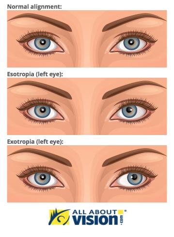 eye care for the adirondacks malone new york