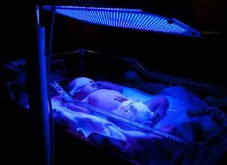 ictericia en el recién nacido
