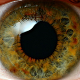 Photo of Eyeball
