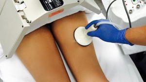 non surgical fat reduction san antonio - Cellu-Light Sculpt Away