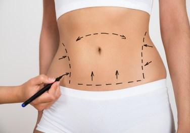 Unwanted Fat Body Treatment San Antonio