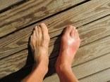 footpaingout