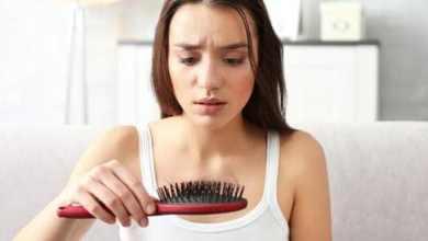 تساقط الشعر والأسباب الأكثر شيوعاً