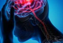 Photo of كيف تنجو من السكتات الدماغية المفاجئة؟