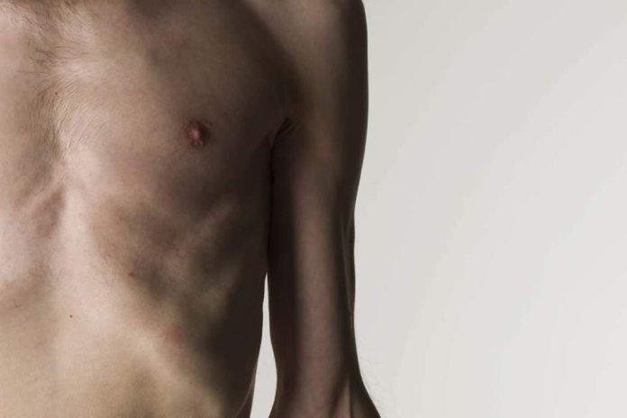 De cada 3 pessoas no mundo uma é obesa ou desnutrida