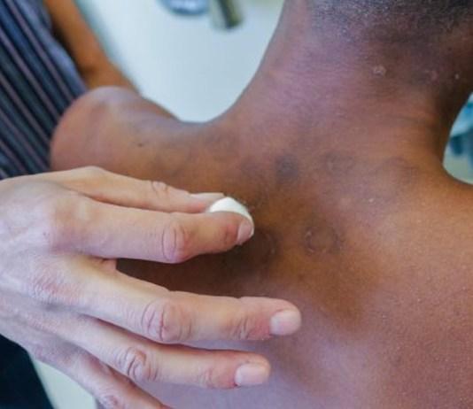 Hanseníase: conheça os sintomas e o tratamento para a doença