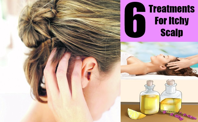 6 Treatments For Itchy Scalp
