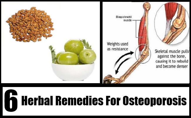 6 herbal remedies for osteoporosis osteoporosis treatment search osteoporosis publicscrutiny Gallery