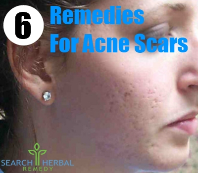 6 Herbal Remedies For Acne Scars