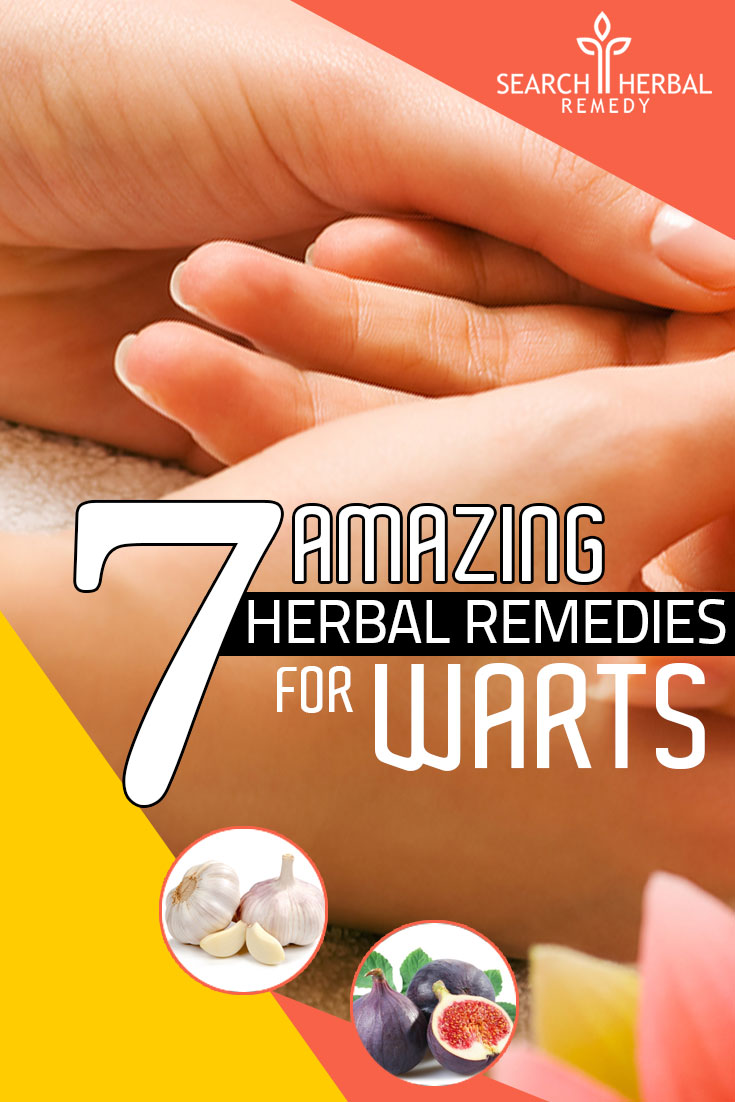 7-amazing-herbal-remedies-for-warts