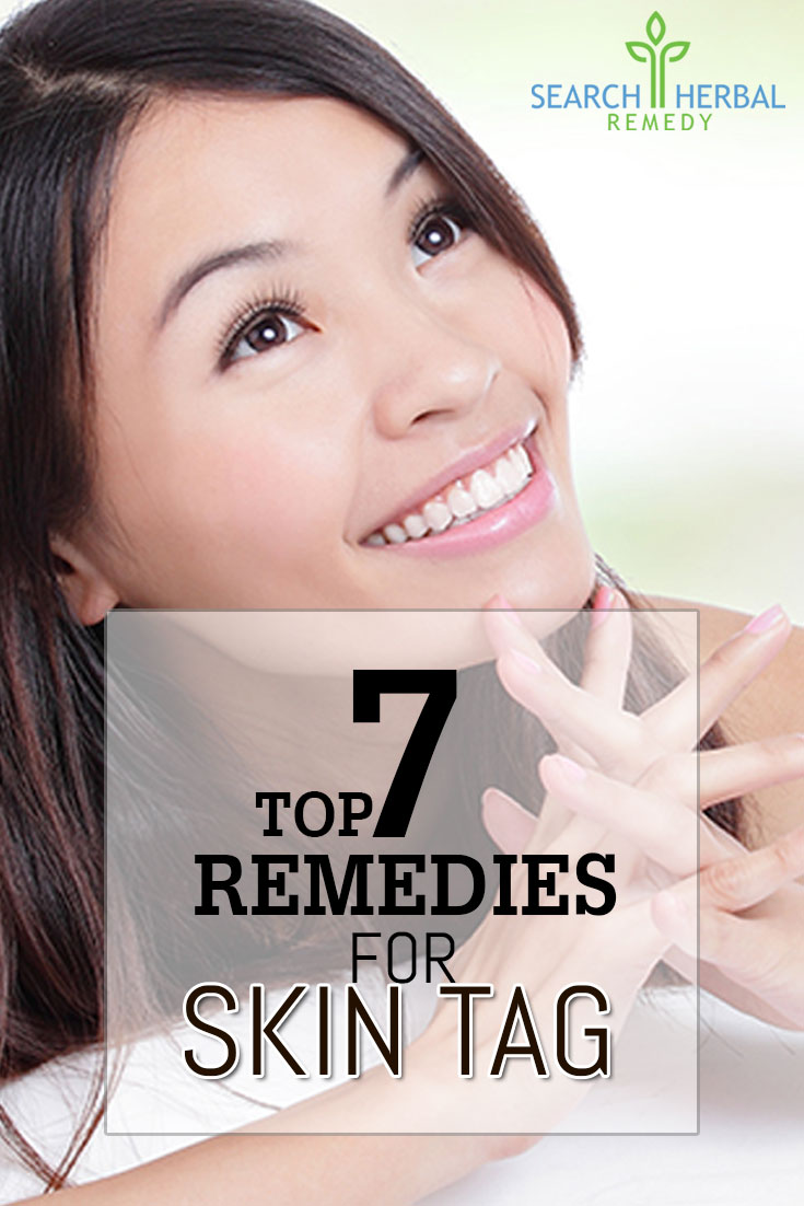 top-7-remedies-for-skintag