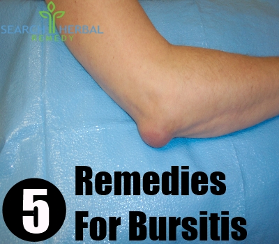 Natural Remedy For Bursitis In Knee