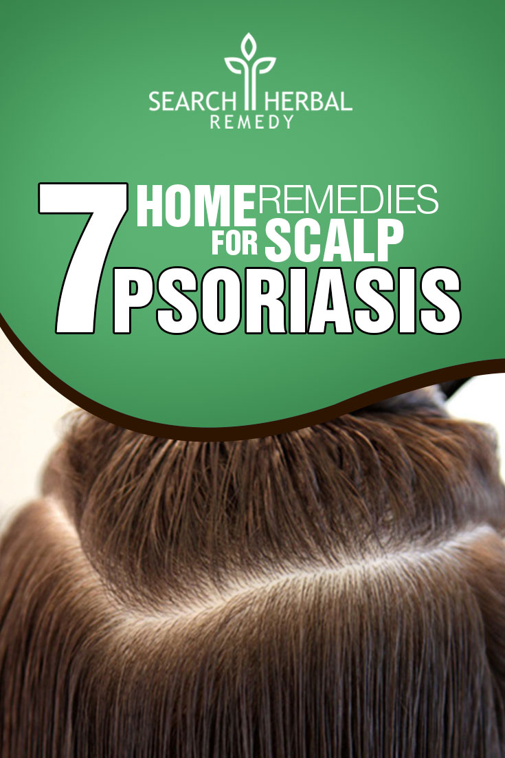 7-home-remedies-for-scalp-psoriasis