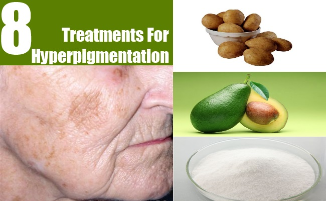 8 Treatments For Hyperpigmentation