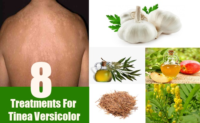 8 natural treatments for tinea versicolor - how to treat tinea, Skeleton