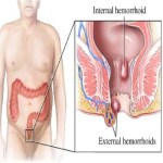 10 Natural Treatments For Hemorrhoids