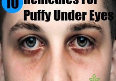 10 remedies for puffy under eyes