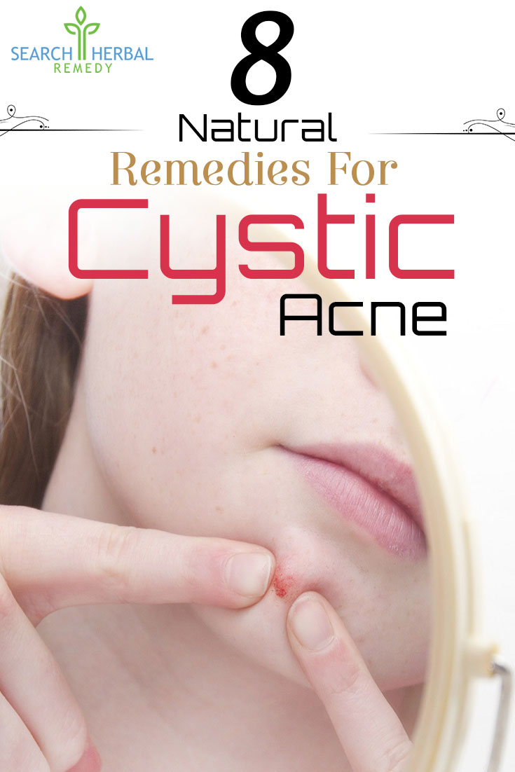 8-natural-remedies-for-cystic-acne