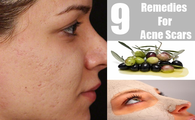 9 Remedies For Acne Scars
