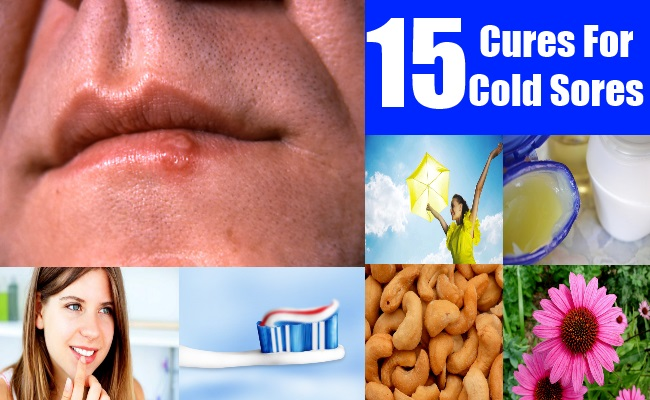 15 Cures For Cold Sores