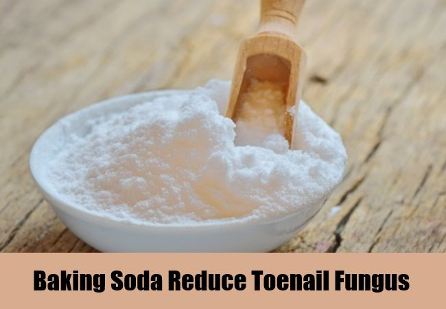 10 Natural Cures for Toenail Fungus - How to Cure Toenail