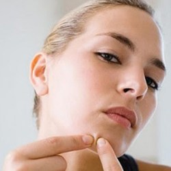 Pimple Home Remedies