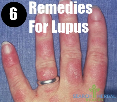 6 Remedies For Lupus