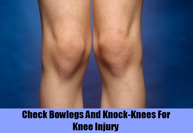 Check If You Have Bowlegs And Knock-Knees