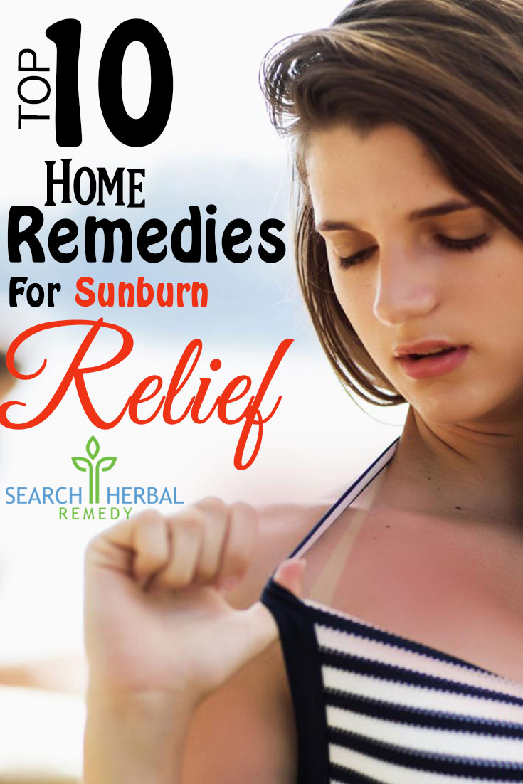 top-10-home-remedies-for-sunburn-relief