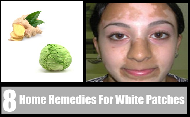 White Patches