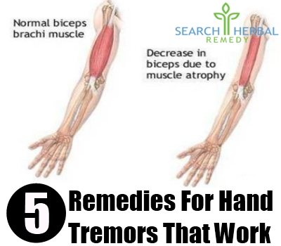 5 Remedies For Hand Tremors - Hand Tremors Treatments ...