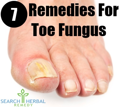 7 Remedies For Toe Fungus