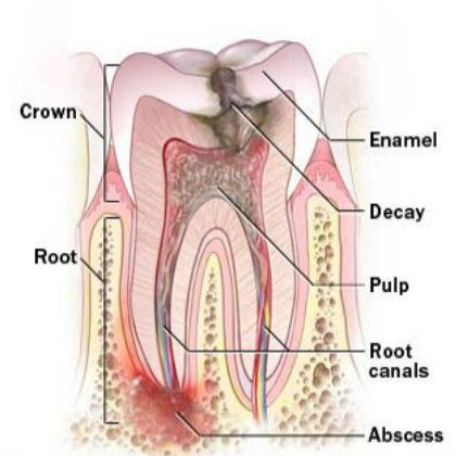 Natural Remedy Tooth Infection Pain