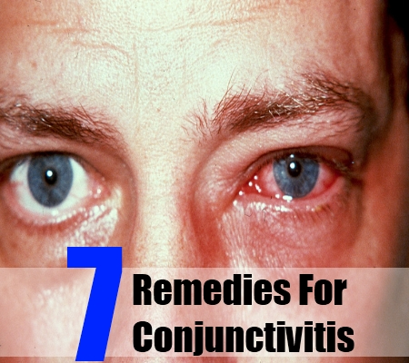 ... & Herbal Treatment For Conjunctivitis | Search Herbal & Home Remedy