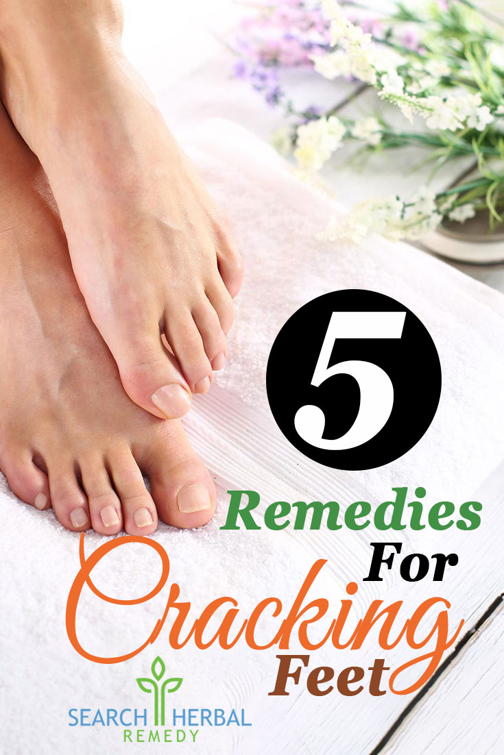 5-remedies-for-cracking-feet
