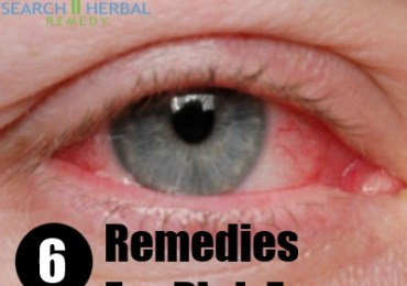 6 Remedies For Pink Eyes