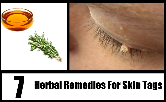 Top 8 Herbal Remedies For Skin Tags How To Treat Skin