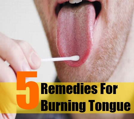 burning tongue