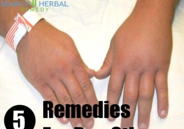 5 Remedies For Bee Stings