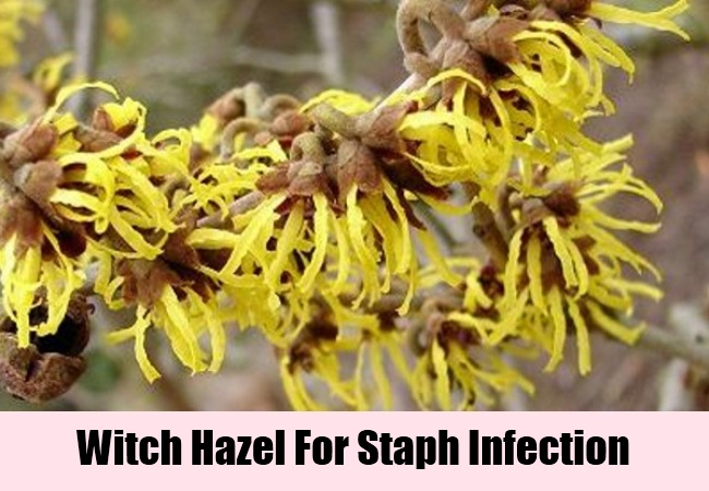 11 Staph Infection Home Remedies, Natural Treatments And Cures