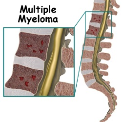 Natural Remedies For Multiple Myeloma Cancer
