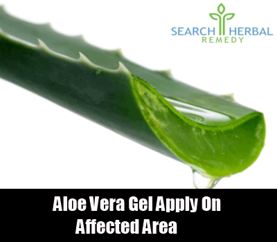 7 remedies for frost bite search herbal home remedy aloe vera gel fandeluxe Ebook collections