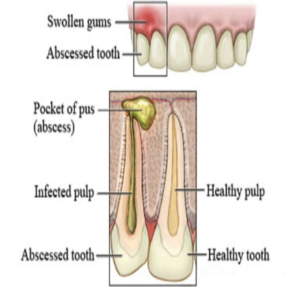 How To Treat Tooth Pain Naturally