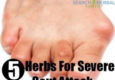 severe gout attack