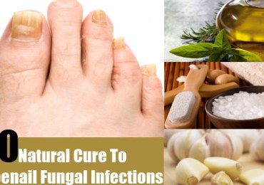 Natural Cure To Toenail Fungal Infections
