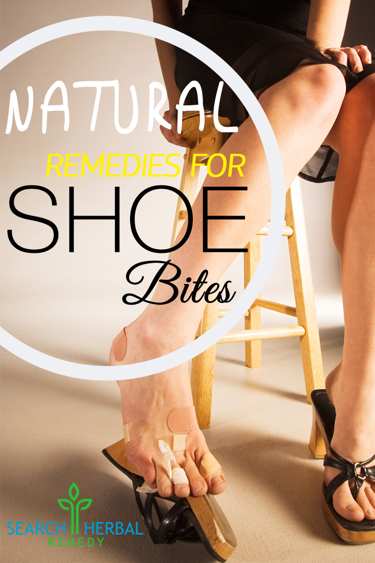 13 Natural Remedies For Shoe Bites