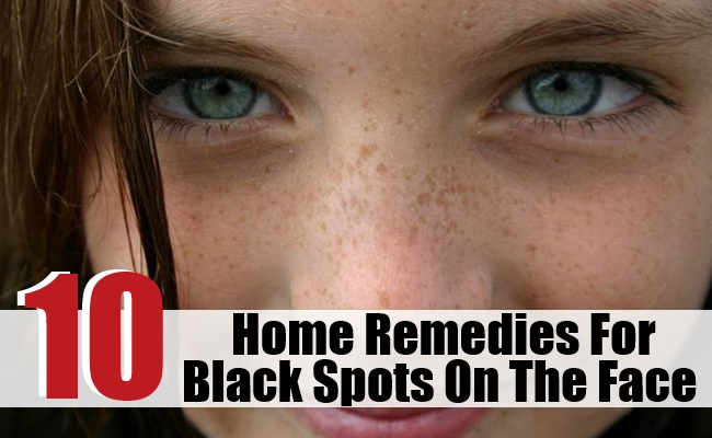 Home Remedies For Black Spots On The Face
