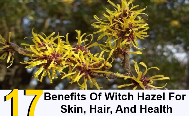17 Benefits Of Witch Hazel For Skin, Hair, And Health