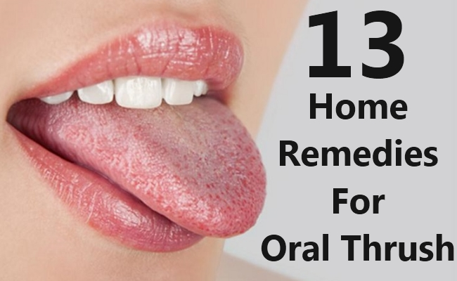 13 Most Simple Home Remedies For Oral Thrush Search