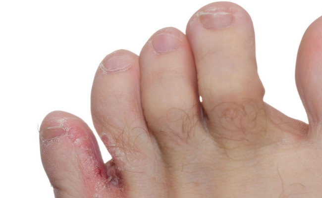 Treats Fungal Infections